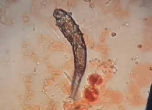Treating Scabies in Dogs
